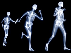 osteoporosis skeletal areas affected