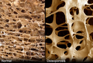 webmd_rm_photo_of_porous_bonesWNL vs diseased live