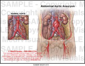 aortic aeurysm 5