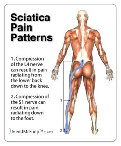 Sciatica pain patterns, 1. Compression of the L4 nerve can result in pain radiating from the lower back down to the knee. 2. Compression of the S1 nerve can result in pain radiating down to the foot, MendMeShop TM ©2011