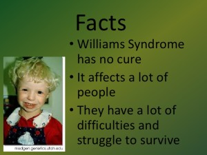 williams-syndrome-2