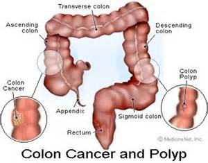COLON CANCER 2 SHOT