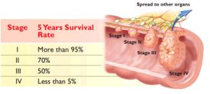 COLORECTAL CANCER 2