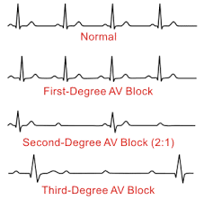 HeartBlocks2