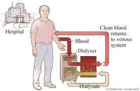 hemodialysis explained