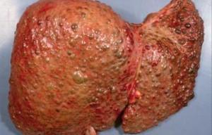 liver diease 1