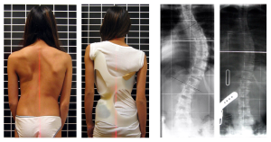 scoliosis II
