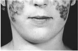 Lupus Part1a