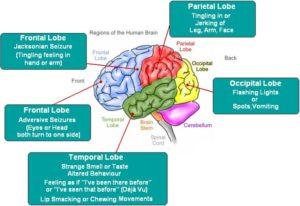 epilepsy2