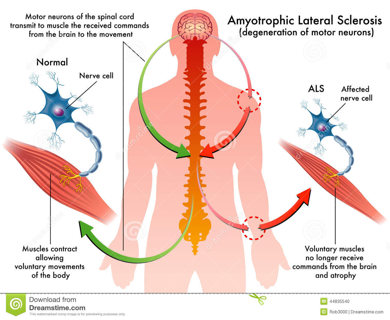 Lou Gehrigs Disease Amyotrophic Lateral Sclerosis Strive