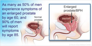 Normal Prostate vs. Benign Prostatic Hyperplasia