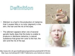 Albinism1a