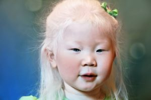 Albinism3
