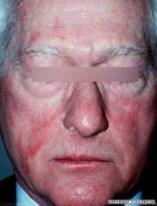 photosensitivity drug induced