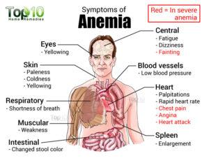anemia2