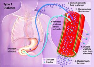 diabetes-insulin-glucose-problem