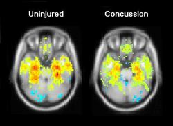 concussion 4