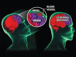 concussion 5