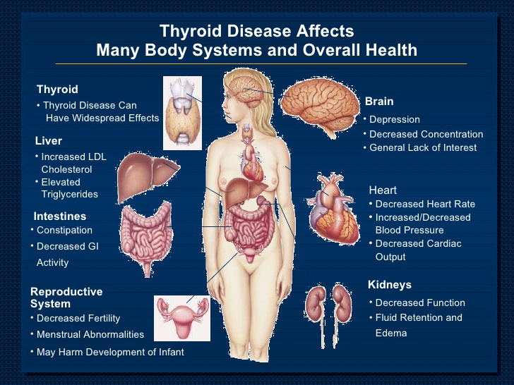 thyroid disease and parathesis