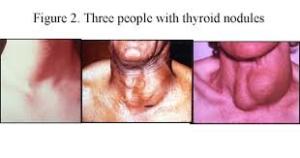 thyroidawarenessmonthgoiter2